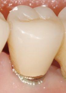 マイクロビーズが歯根に詰まる